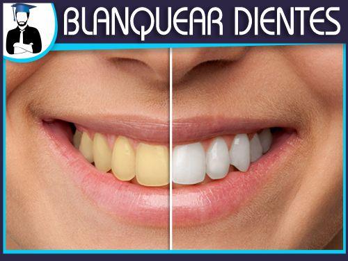 Blanquear dientes en photoshop